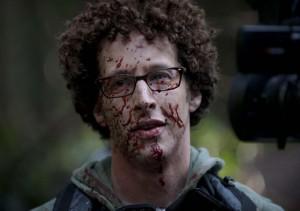 Že by mu stříknul do obličeje kečup?