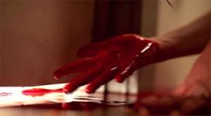 Trochu krve vyteklo.